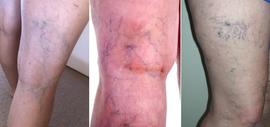 Pacjenci z pajączkami na nogach