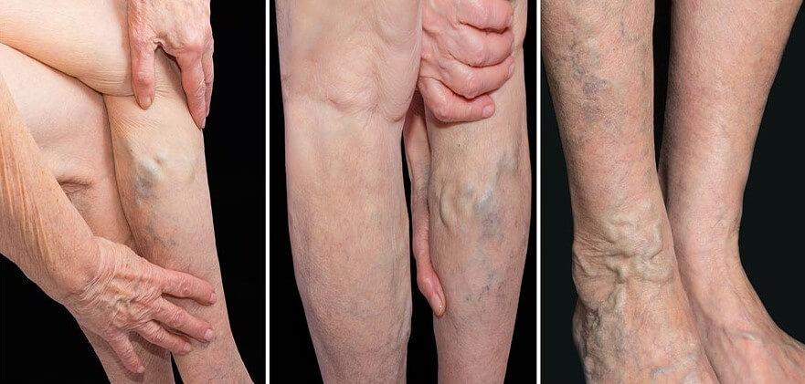 Pacjent z żylakami nóg